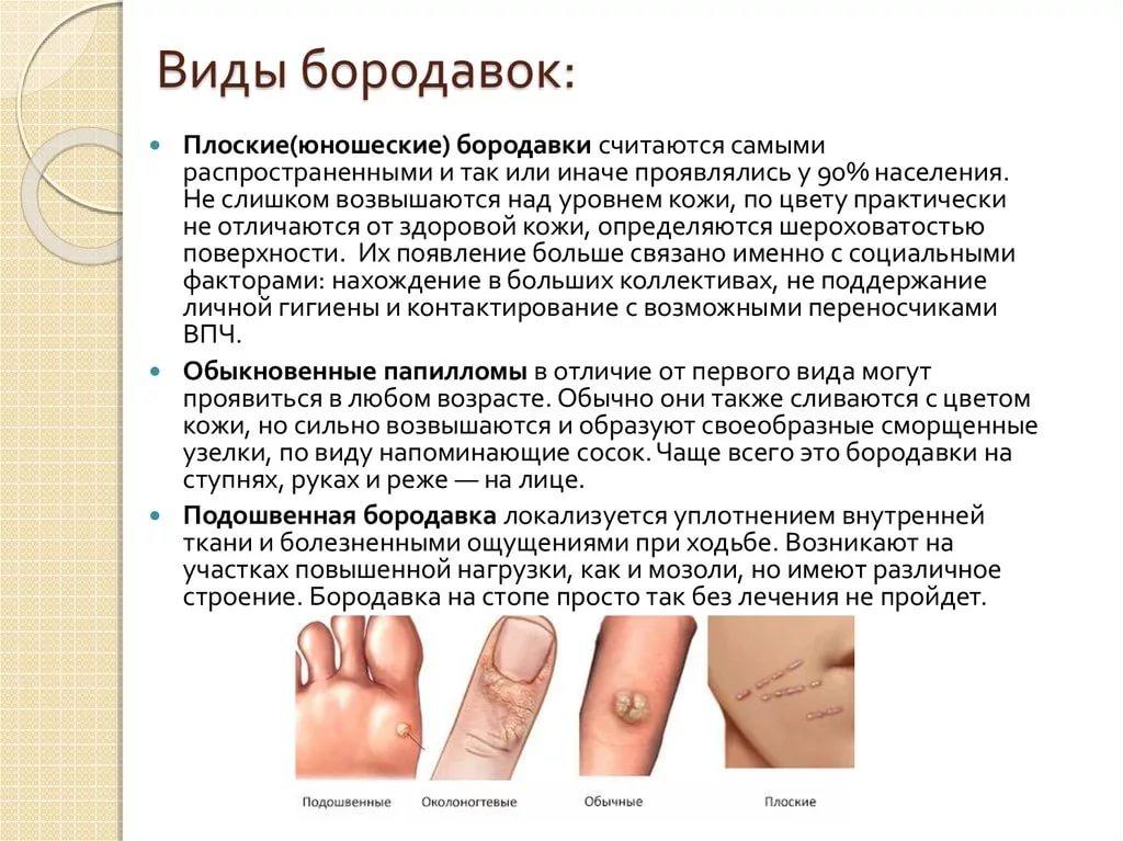 Причины появления и лечение бородавок на руках и пальцах
