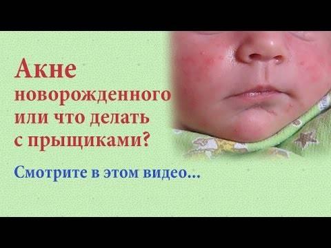 Прыщи после родов: причины появления, когда проходят и как лечить?