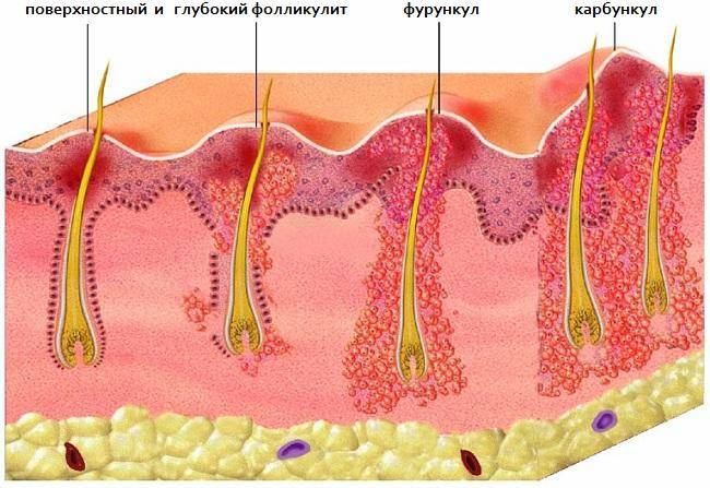 Фурункул на груди — причины, симптомы и лечение