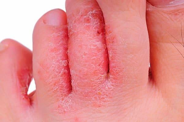 Грибок стопы — лечение, причины, симптомы и препараты