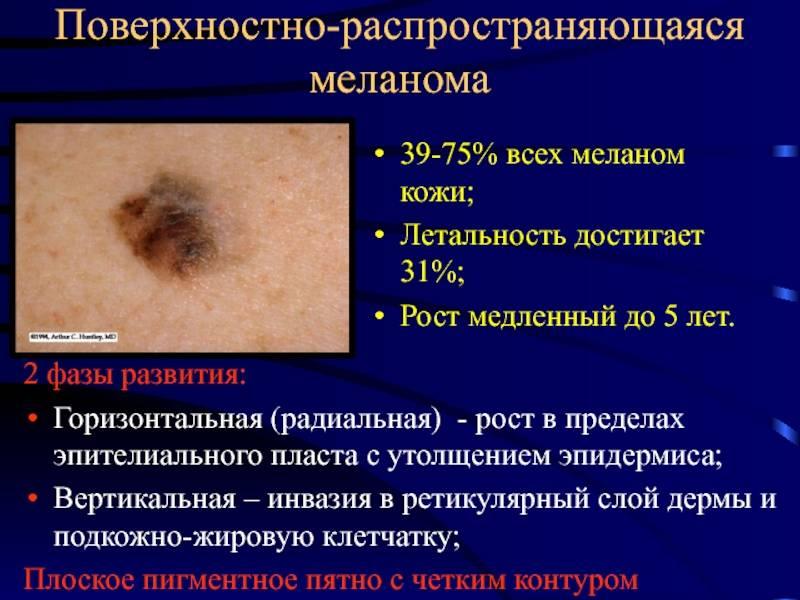 Виды доброкачественной и злокачественной меланомы
