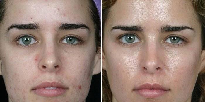 27 мазей от прыщей на лице, кремов от угрей – недорогие и эффективные препараты и средства от угревой сыпи