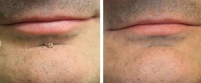 Удаление папиллом лазером в косметологических клиниках: сколько стоит процедура и какие бывают последствия