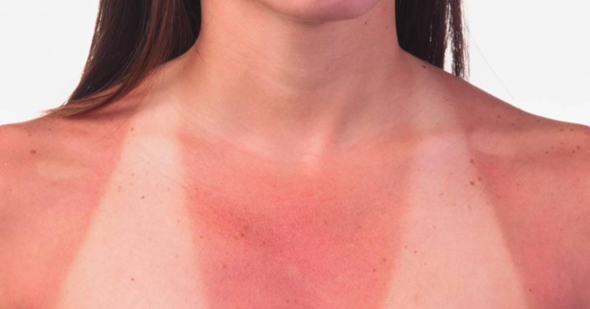Что можно и нельзя делать при солнечном ожоге