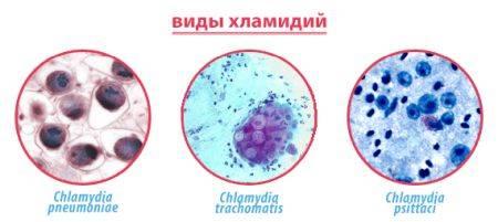 Какие пути заражения хламидиозом существуют?