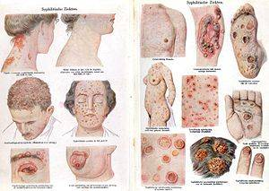 Паховый лимфогранулематоз