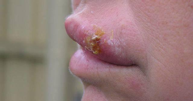 Герпес на губах и простуда отличия