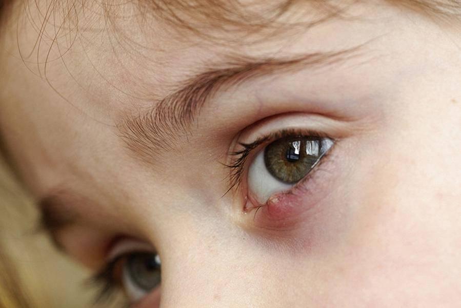 Фурункул у ребенка: причины и лечение