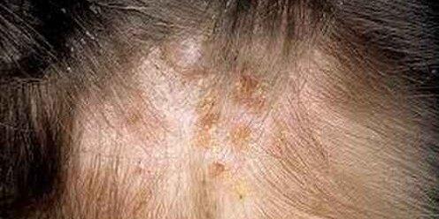 Лобковый педикулез (фтириаз): симптомы и способы заражения, лечение