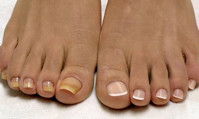 Выбираем лучший противогрибковый лак для ногтей