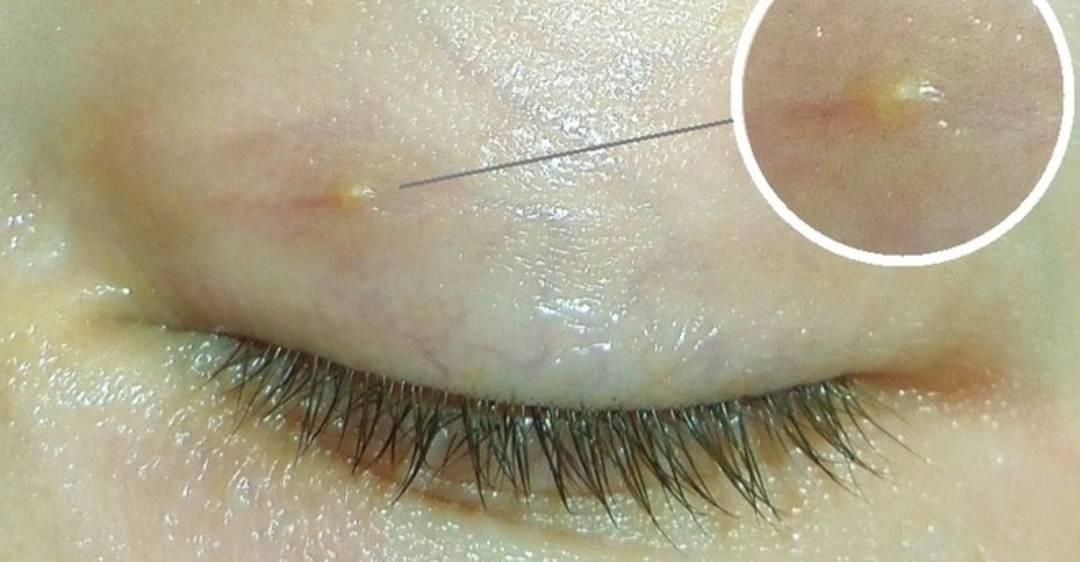 Жировики на лице: фото, причины и лечение
