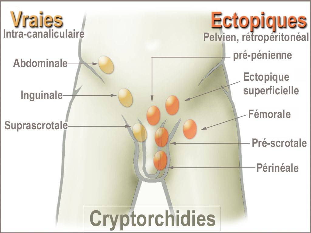 Крипторхизм. причины, симптомы, диагностика и лечение