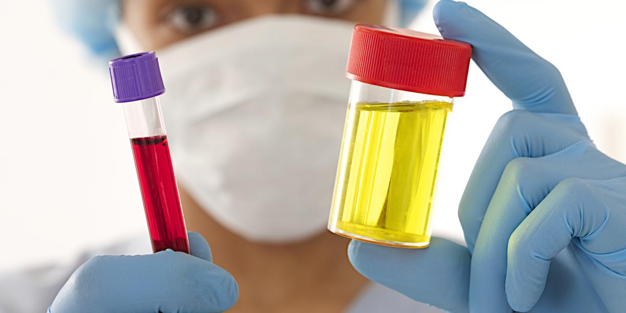 Уретерит – воспаление мочеточника: симптомы и лечение