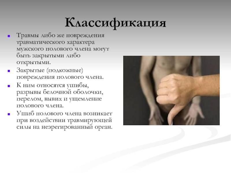 Травмы члена полового  лечение и последствия травмы полового члена
