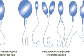 Анализ спермограммы расшифровка показателей