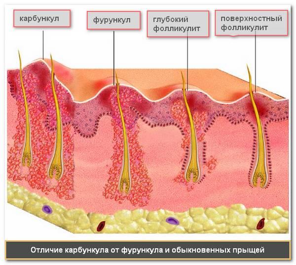 Чирей под грудью. особенности фурункула и лечение в области груди. проблемы с внутренними органами
