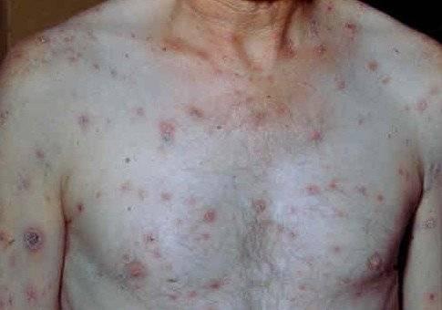 Сыпь на члене у мужчин: причины, симптомы и лечение в домашних условиях