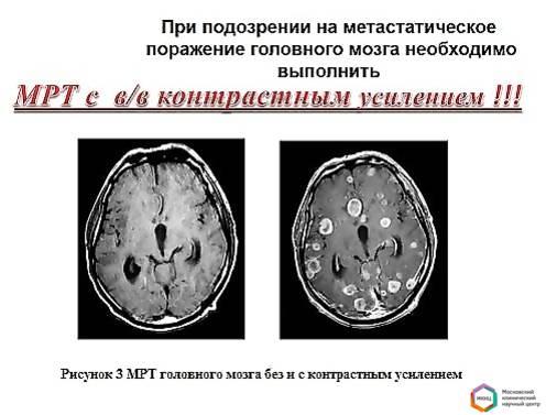 Метастатическая меланома