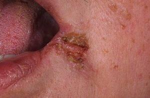 Почему появляются заеды в уголках рта. как правильно лечить заеды