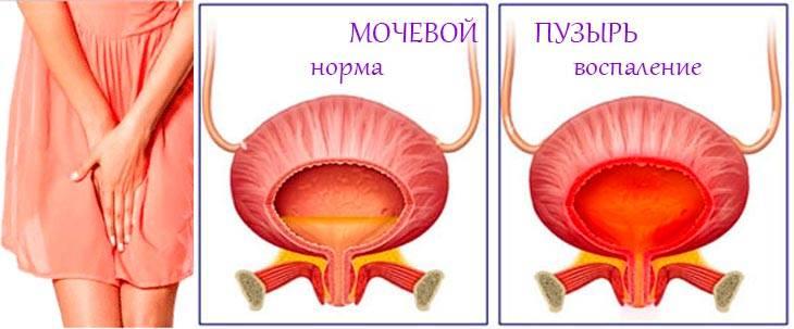 Может ли лопнуть мочевой пузырь при задержке мочеиспускания у человека