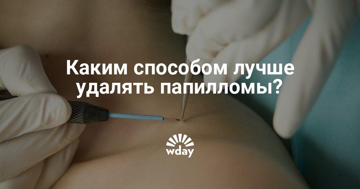 Как удалить папилломы на веке, шее, под мышками, на лице, теле, интимных местах, народными средствами и лекарствами в домашних условиях