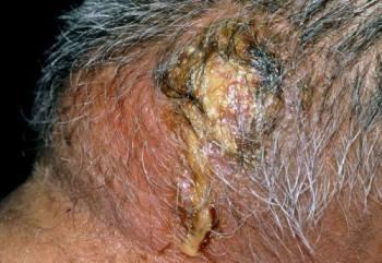 Какие антибиотики помогают при лечении фурункулеза