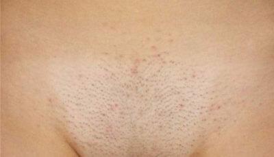 После бритья появляются прыщи