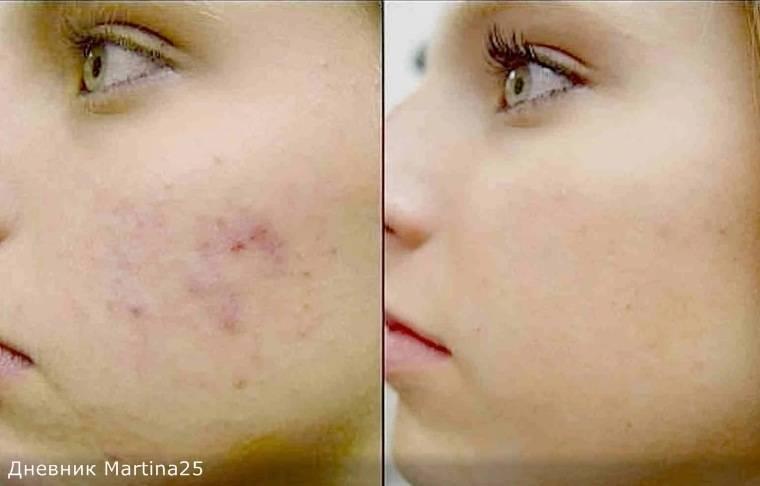Эта женщина уже много лет умывает лицо водой с солью… результаты просто поразительные!