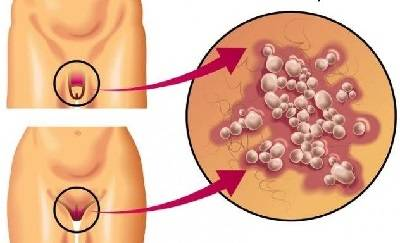 Появление зуда в паху у мужчин: о какой болезни сигнализируют симптомы, лечение недуга