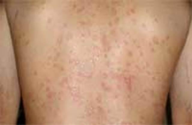 Красный лишай у человека: симптомы, лечение, фото