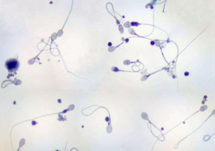 Пиоспермия — как лечить, эко, зачатие