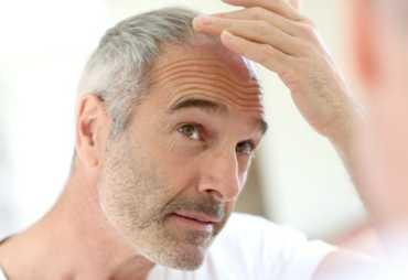 Алопеция у мужчин: от видов облысения до лечения