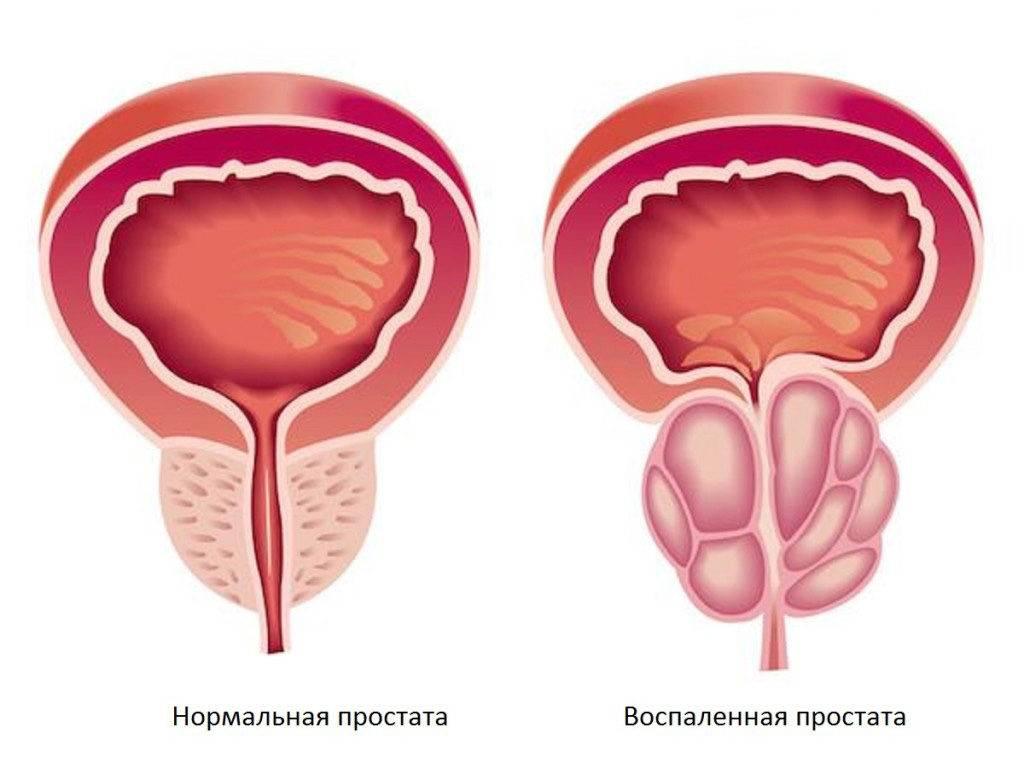Тянущая боль в предстательной железе