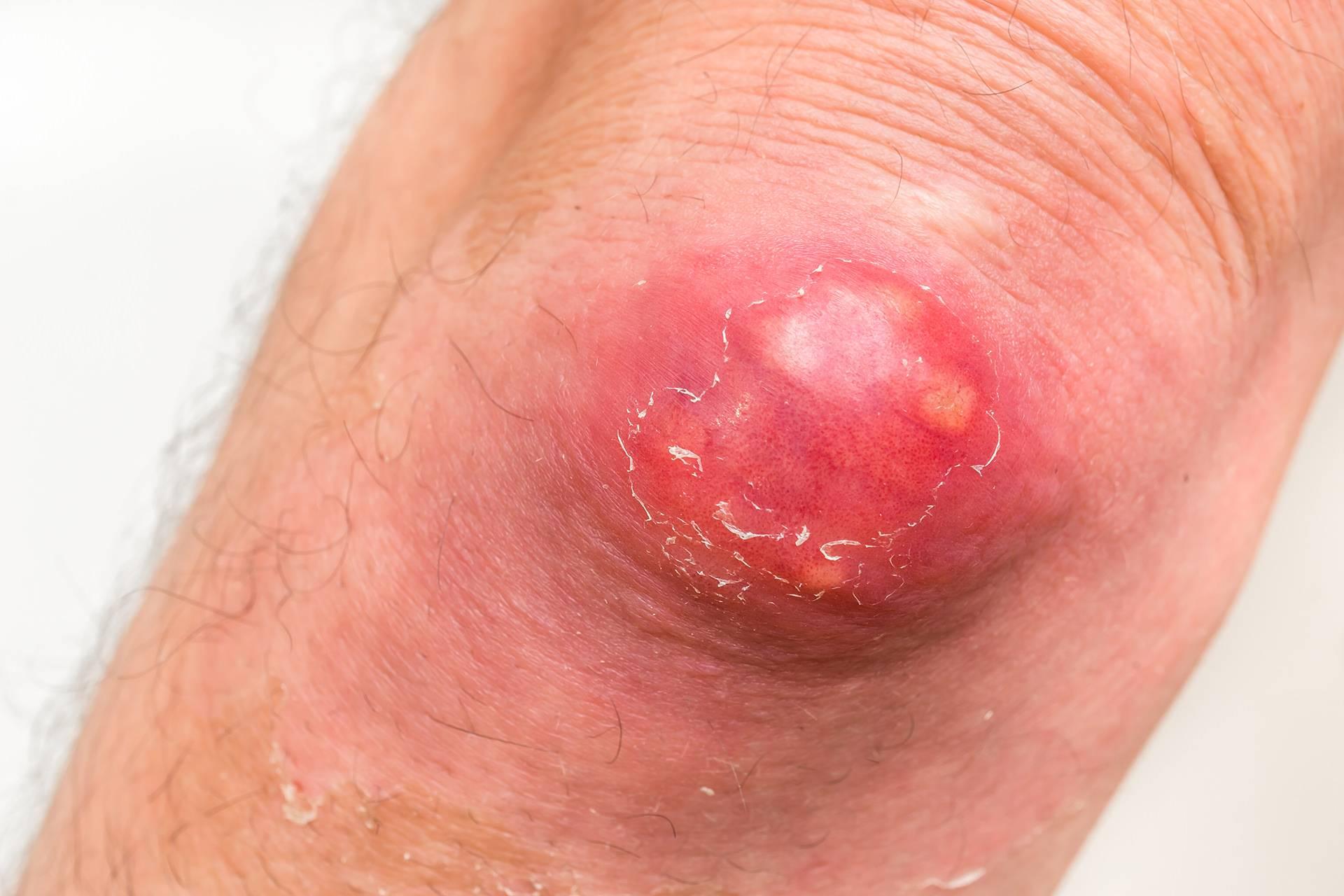 Антибиотики при фурункулезе для лечения