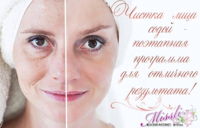 Огуречная маска для лица в домашних условиях: «сокровищница» пользы для всех типов кожи