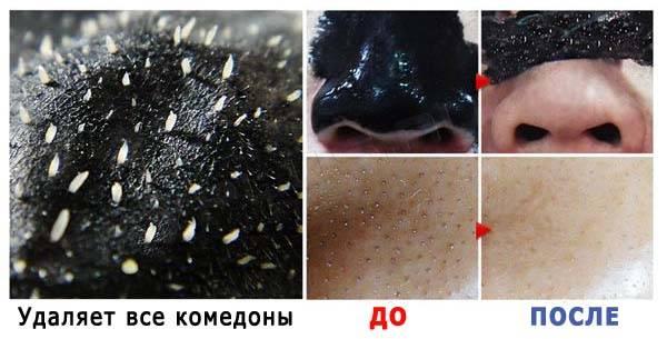 Крем из масла и свеклы для лица. маска из свеклы для лица от морщин. маска для лица из свеклы от прыщей