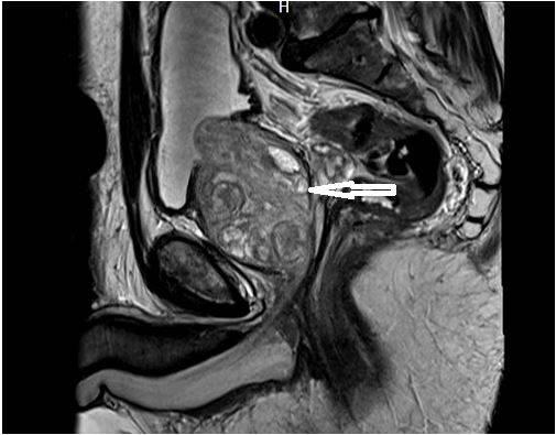 Компьютерная томография предстательной железы
