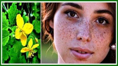 Солнечный цветок для сияющей кожи или как избавиться от прыщей на лице с помощью ромашки