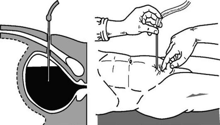 Как тренировать мочевой пузырь при цистостоме