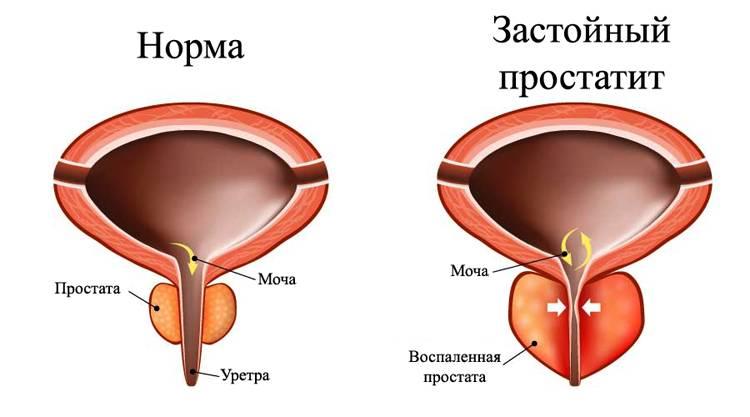 Как проявляется простатит: какие симптомы при простатите у мужчин?
