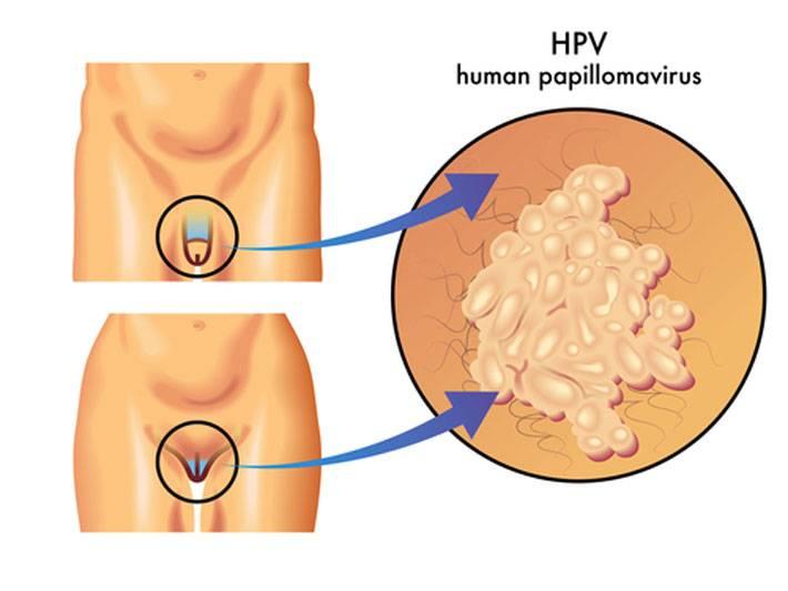 Роды при папилломавирусе: как поступить женщине?