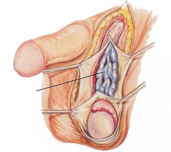 Что такое варикоцеле у мужчин - симптомы и лечение