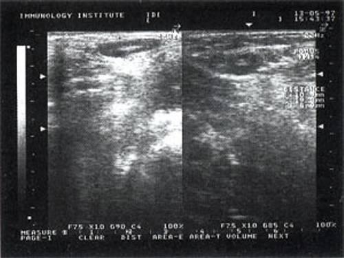 Лимфоузлы под мышкой. фото, причины у мужчин, женщин. что делать, если болят. лечение народными средствами, антибиотики, мази