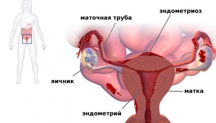 Какие выделения из половых органов возможны при климаксе: норма и патология