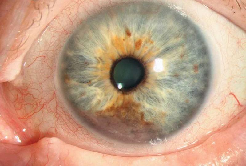 Причины развития меланомы хориоидеи глаза, методы лечения