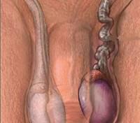 Перекрут гидатиды яичка: когда «мужской аппендикс» бастует