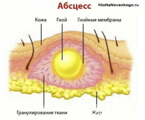 Абсцесс — виды, причины развития и лечение