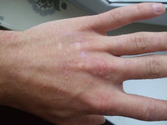 Водяные прыщики на руках: лечение, фото