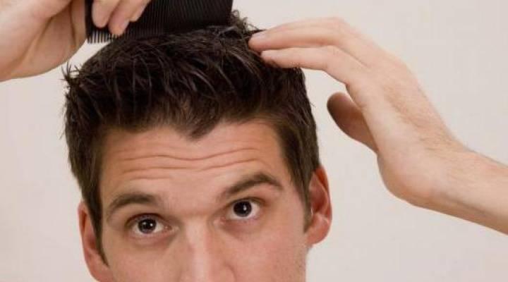 Причины прыщей в волосах и советы по избавлению от них
