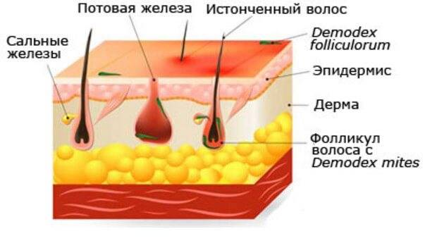 Мазь ям от прыщей: состав, эффективность, способы применения